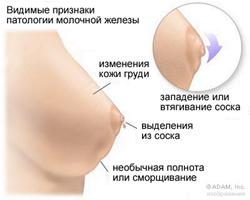 рак сосков фото