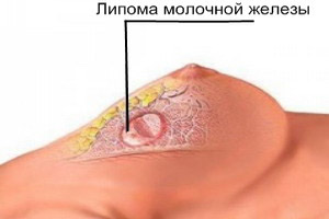 können lipome schmerzen