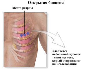 sterbevorgang bei lungenkrebs