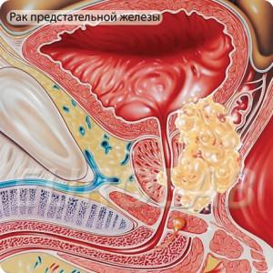 behandlung bei prostatakrebs